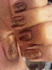 hamman nail